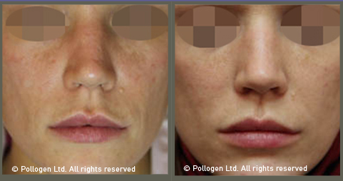 trifractional before after