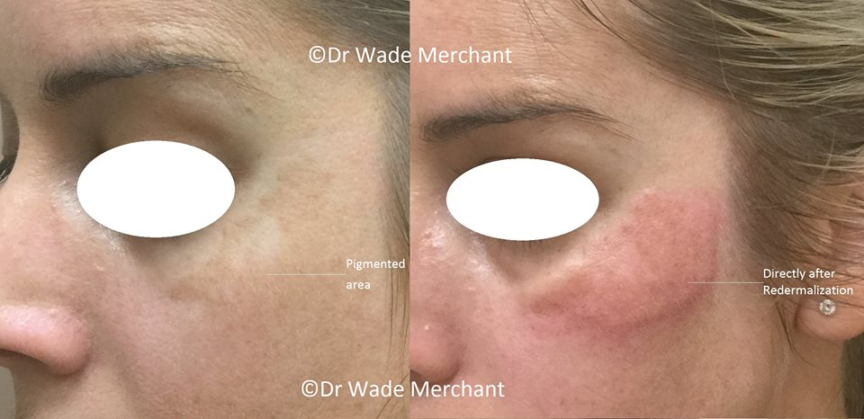 Rederm before after